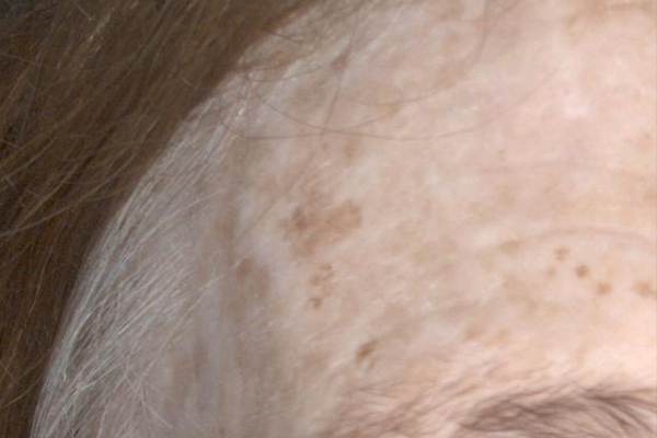 Sun Spots After - Pigmentation Removal