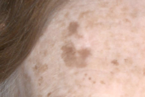 Sun Spots Before - Pigmentation Removal