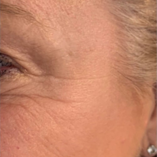 Anti-Wrinkle Injections Crows Feet Lichfield