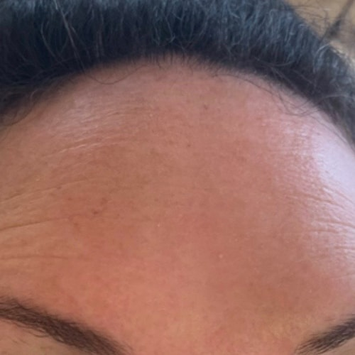Anti-Wrinkle Injections Forehead Lines Lichfield